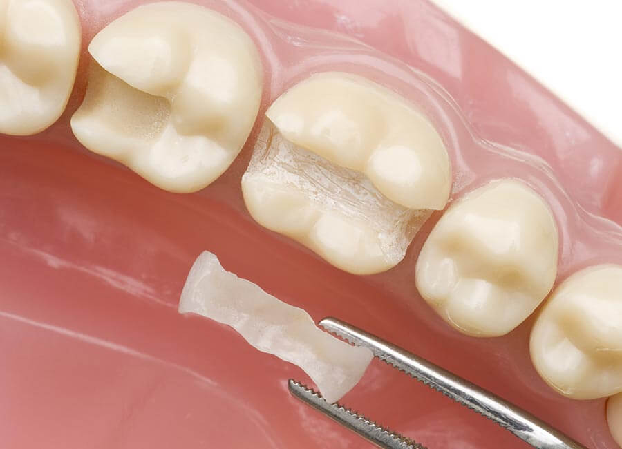 Cosmetic Restoration for Teeth