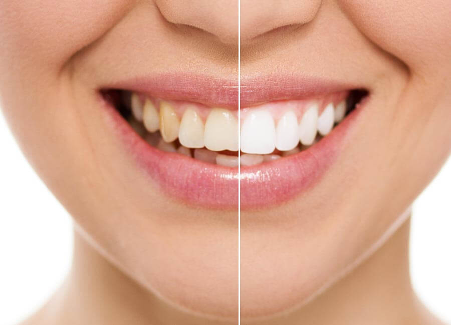 The Difference in Teeth Whitening