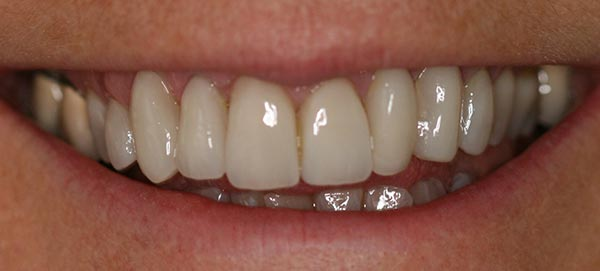 Teeth After Care