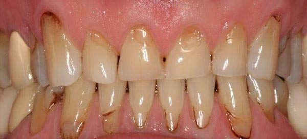 Serious Plaque and Decay of Teeth