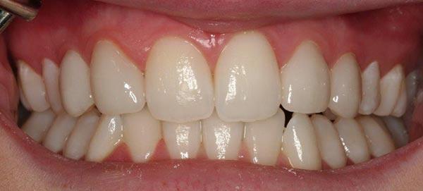 Teeth Straightened and Whitened