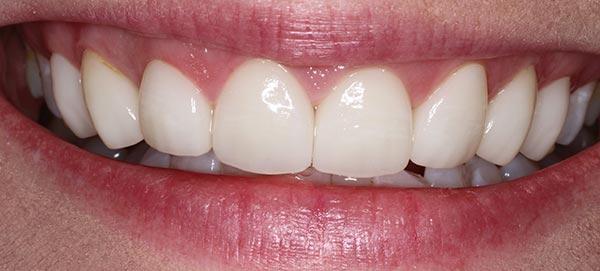 White Straight Teeth