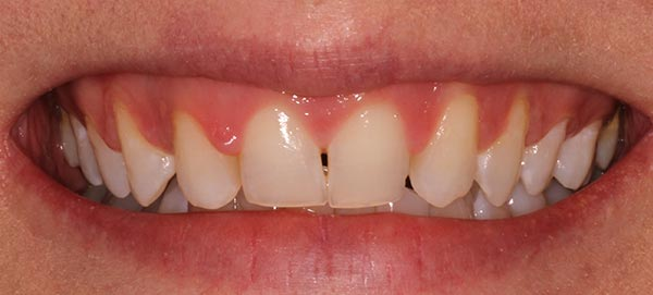 Gap in Between Two Front Teeth