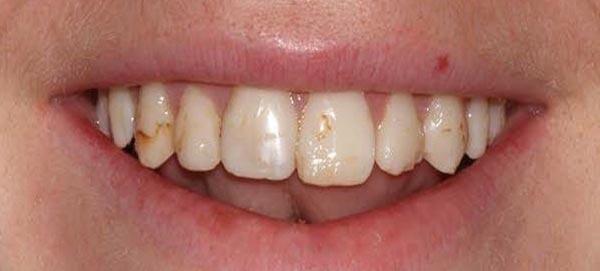 Teeth Decay