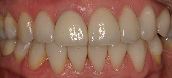 Straight Teeth after Veneers
