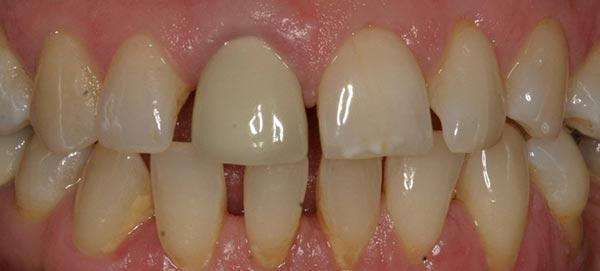 Teeth with Gaps